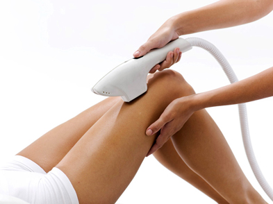 fotoepilation